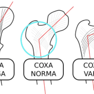 Diagram showing different hip joint variation angles